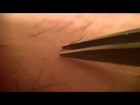 Trich Pluck & Pull hair with tweezers MACRO video w/commentary