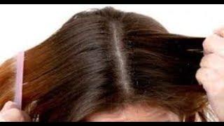 كيفية ازالة الدهون من الشعر  \ علاج الشعر الدهنى بطريقة طبيعية مضمونه ومجربة