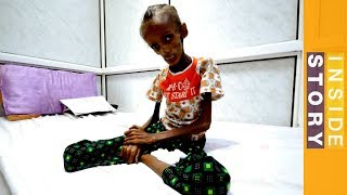 How can world leaders end Yemen