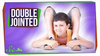 Why Are Some People Double-Jointed?