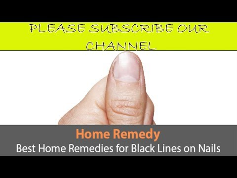 Best Home Remedies for Black Lines on Nails - Fungus key Treatment V 4 YOU!