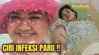 Pretty Asmara Meninggal, Waspadai 5 Gejala Infeksi Paru