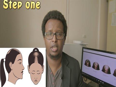 female hair loss - a smart treatment plan