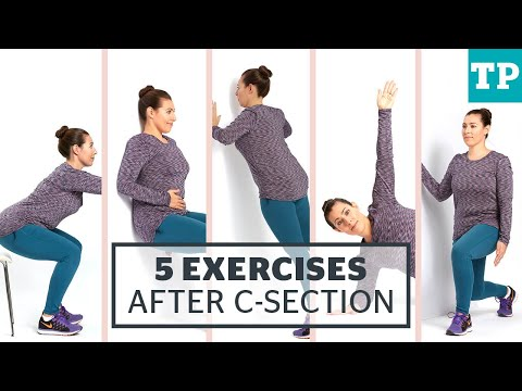 Exercises for after a C-section