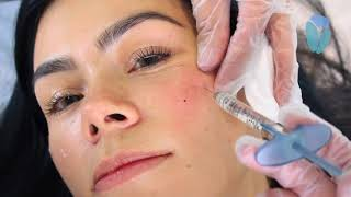Volite Injections-Skinboosters