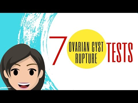 Do You Have RUPTURED OVARIAN CYSTS? 7 Must-Know Tests