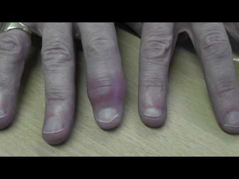 finger infection.m2ts