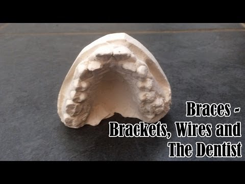 Braces - Brackets, Wires and The Dentist