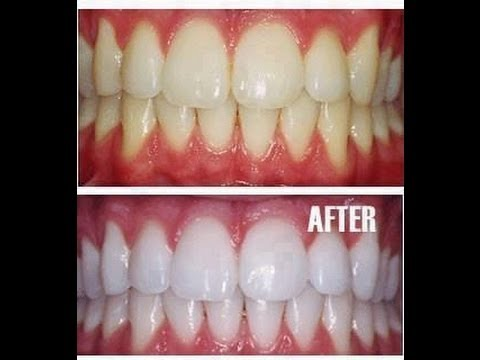So You Want Whiter Teeth???