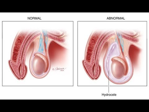 How to Cure a Hydrocele (9 STEPS) TO CURE A HYDROCELE