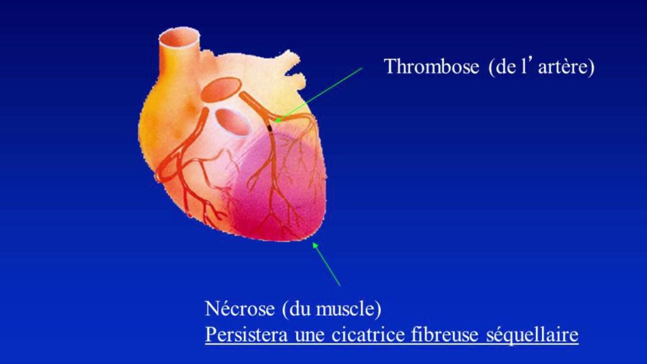 5 à 7: Dépister et prévenir l'insuffisance cardiaque