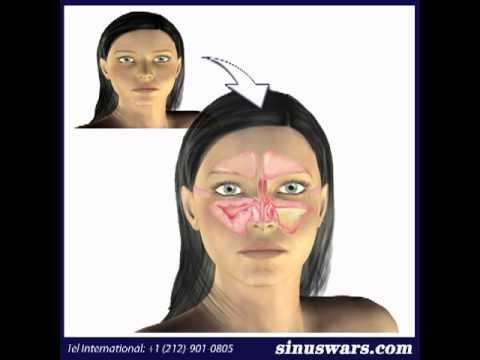 SinusWars2 Post Nasal DripTreatment