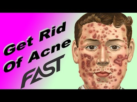 Acne  -  Home Remedies For Acne Scars - How To Get Rid Of Acne Fast