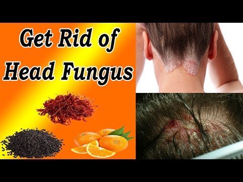How To Get Rid Of Head Fungus Naturally At Home -