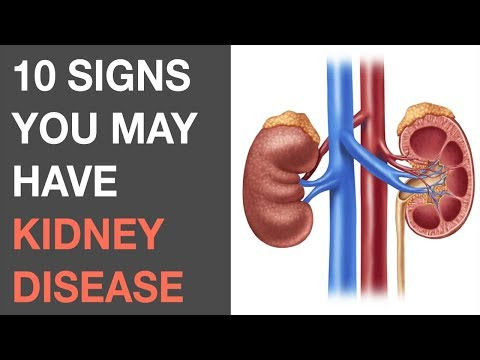 10 Signs You May Have Kidney Disease | Symptoms Of Kidney Problems You Should Know