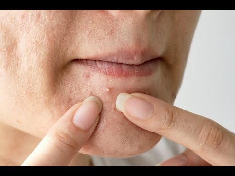How to Get Rid of Pimples at Home Naturally?