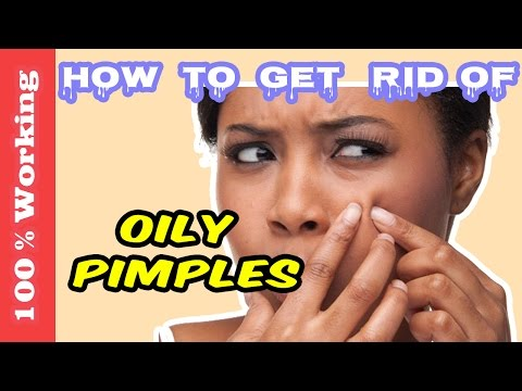 How To Get Rid Of Oily Skin Pimples Overnight - Fast - Home Remedies - Blackheads - Acne - Remove