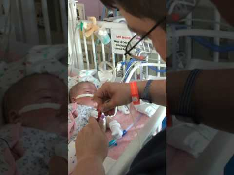 03 Early Days of a Micropreemie