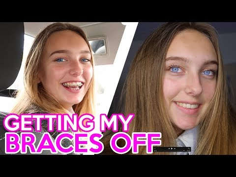 GETTING MY BRACES OFF AFTER 2 YEARS VLOG!! Lizzie Mason