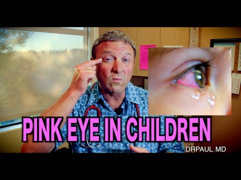 Pink Eye In Children | Pediatric Advice
