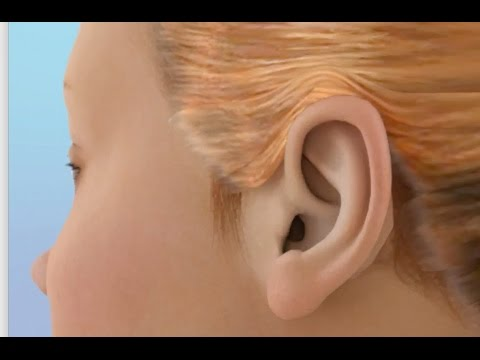 Ear Infection Time Lapse Video (No Drainage)