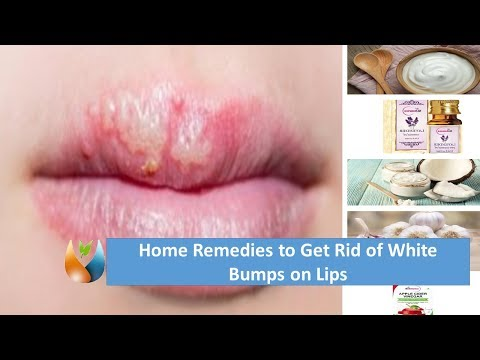 Home Remedies to Get Rid of White Bumps on Lips