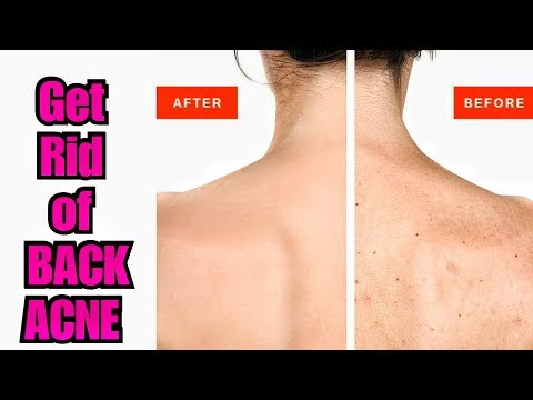 Remove BACK PIMPLES, LEG ACNE, ARMS ACNE - Removal of Body Acne