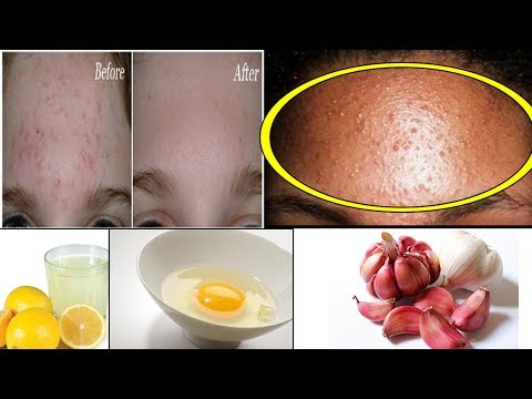 6 Best Ways To Get Rid Of Bumps On Forehead
