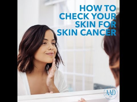 How to check your skin for skin cancer