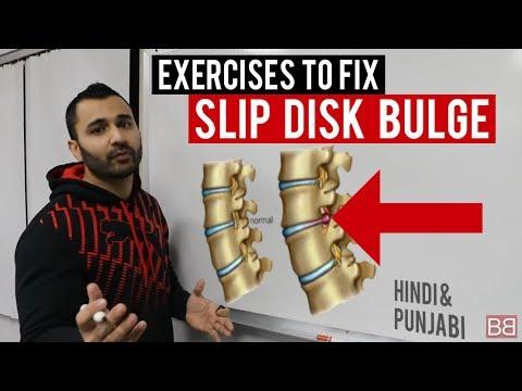 Fix SLIP DISC BULGE Back Pain at Home! (Hindi / Punjabi)