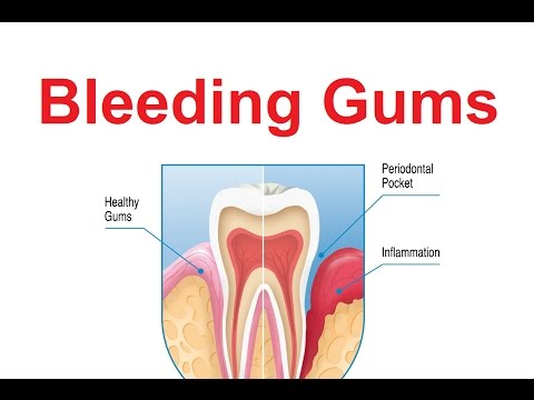 7 Top Reasons of Bleeding Gums