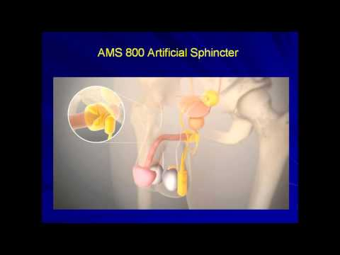 Expert Angle: The Artificial Sphincter in the Management of Urinary Incontinence
