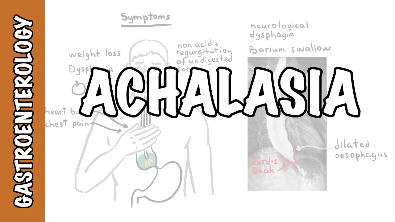 Achalasia (esophageal) - signs and symptoms, pathophysiology, investigations and treatment