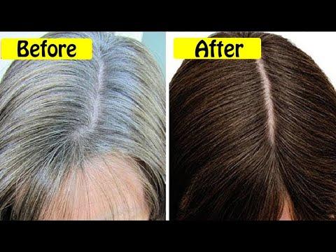 बालो की सफेदी जल्दी क्यु होती है / Premature Hair Greying