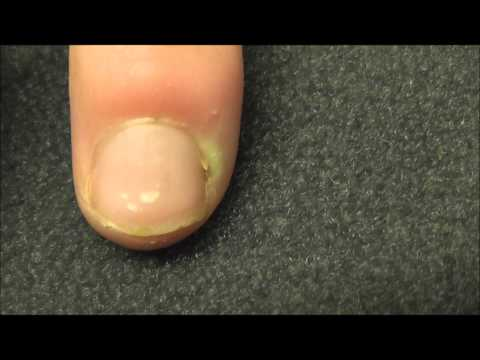 A finger  infection near the nail bed or Paronychia as it is called medically