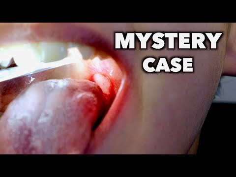 MYSTERY CASE (do you know what this is?) | Dr. Paul