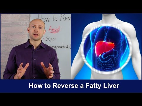 How to Reverse a Fatty Liver 2018 | Untold Secrets