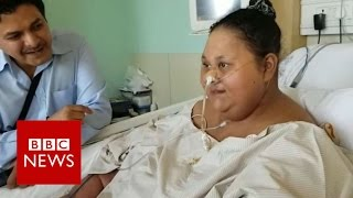 The woman who lost 240kg - BBC News