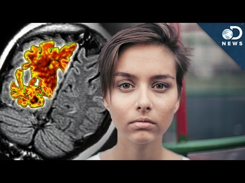 Can Alzheimer's Start In Your 20s?