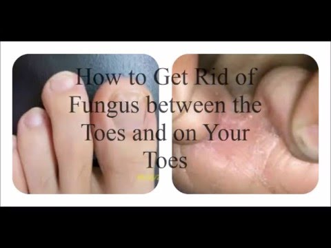 How to Get Rid of Fungus on the Toes and Between the Toes