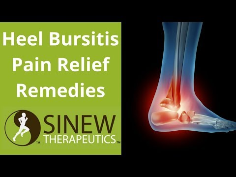 Heel Bursitis Pain Relief Remedies