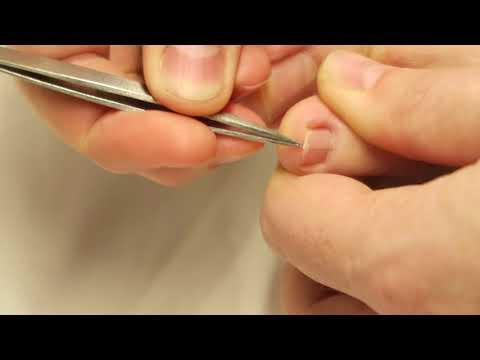 Trying to pull hair splinter from under toenail