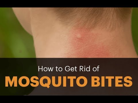 Home remedies for mosquito bites that are natural, safe and highly effective