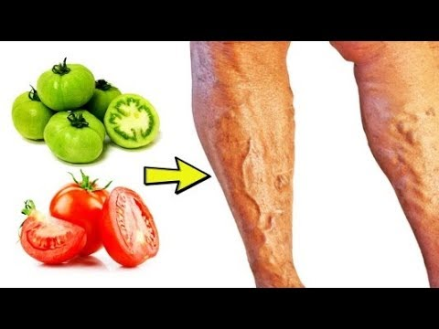 Varicose Veins Natural Treatment At Home