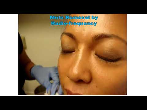 Skin lesions removal by Radio Frequency Electrocoagulation