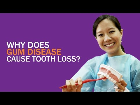 Why Does Gum Disease Cause Tooth Loss (Dr Daylene Leong)