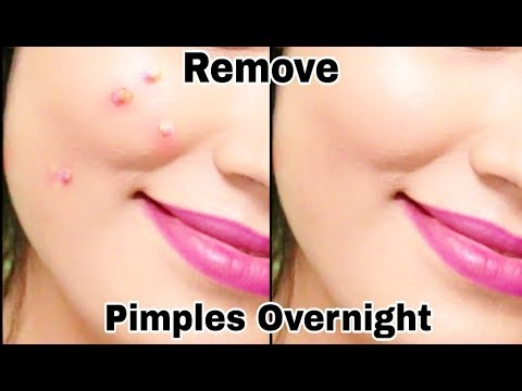 How To Remove Pimples Overnight | Get rid of acne | DIY Life Hacks | Ishita Chanda