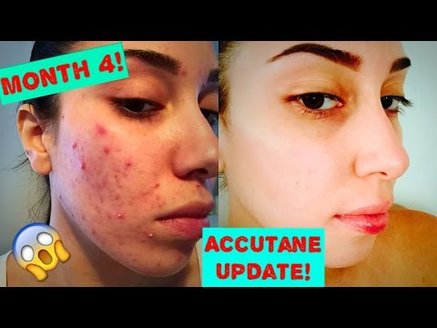 How I Got Rid Of My Acne | Month 4 Update & Side effects NO MAKEUP