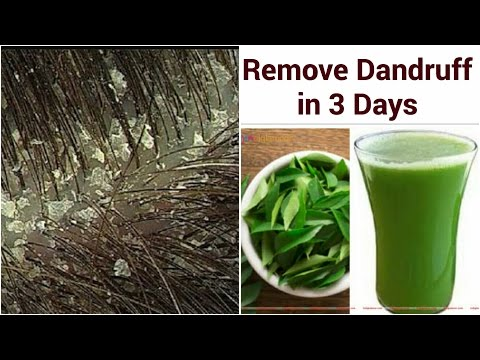 Remove DANDRUFF PERMANENTLY IN 3 DAYS NATURALLY | 2 Simple Steps | GET SILKY,SHINY, SMOOTH HAIR