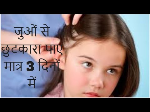 How to get rid of lice naturally home remedy in hindi | जूओं के लिए घरेलू उपाय |